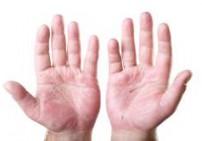 שמן למריחה - Inula Eczemon שלוס